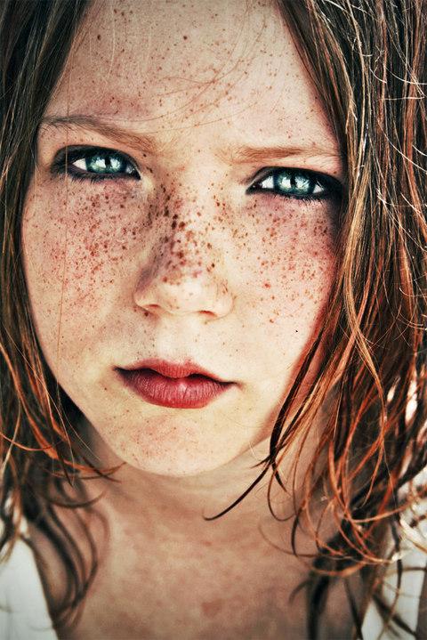 Freckles like stars.